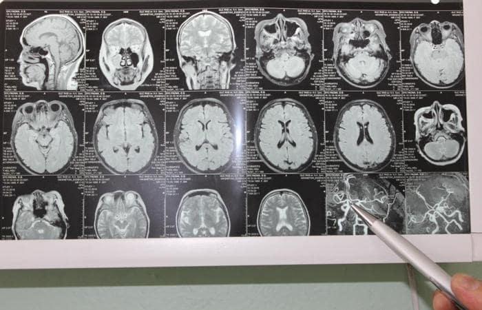 расшифровка результатов МРТ