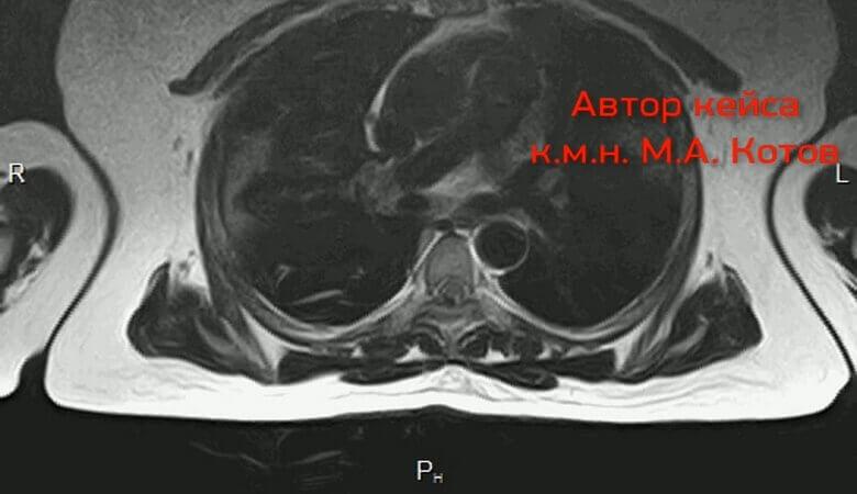 Средне тяжелая вирусная пневмония на расшифровке МРТ легких
