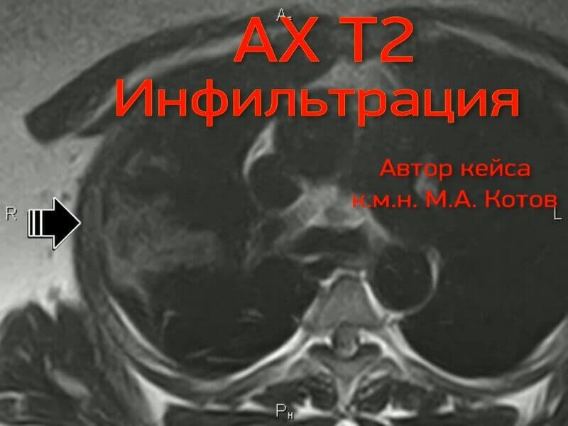 Тяжелая вирусная пневмония на МРТ легких