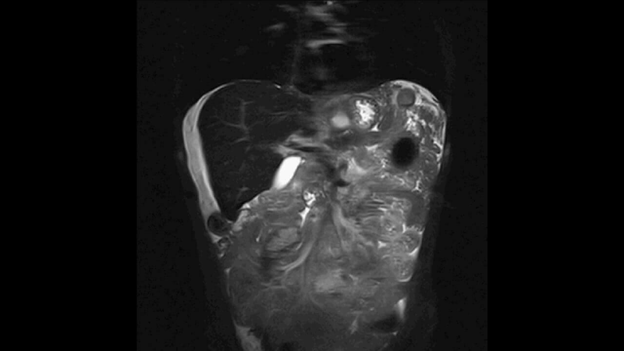 панкреатит на расшифровке МРТ поджелудочной железы